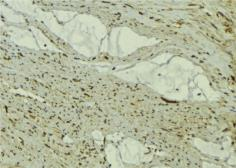 Anti-FBXO32 antibody used in IHC (Paraffin sections) (IHC-P). GTX00810