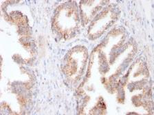 Anti-PSMA antibody [FOLH1/3149R] used in IHC (Paraffin sections) (IHC-P). GTX02639