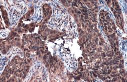 Anti-Rad51 antibody [N1C2] used in IHC (Paraffin sections) (IHC-P). GTX100469