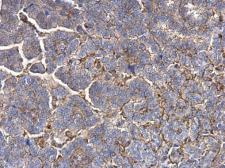 Anti-MMP1 antibody used in IHC (Paraffin sections) (IHC-P). GTX100534
