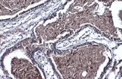 Anti-TMPRSS2 antibody [N2C3] used in IHC (Paraffin sections) (IHC-P). GTX100743