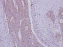 Anti-RRM1 antibody used in IHC (Paraffin sections) (IHC-P). GTX100758