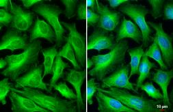 Anti-beta Tubulin antibody used in Immunocytochemistry/ Immunofluorescence (ICC/IF). GTX101279
