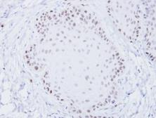 Anti-BLM antibody [C3], C-term used in IHC (Paraffin sections) (IHC-P). GTX101303