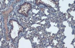 Anti-ACE2 antibody [N1N2], N-term used in IHC (Paraffin sections) (IHC-P). GTX101395