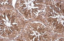 Anti-PGK1 antibody [N1C1] used in IHC (Paraffin sections) (IHC-P). GTX101405