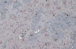 Anti-Iba1 antibody used in IHC (Paraffin sections) (IHC-P). GTX101495