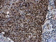 Anti-SOX2 antibody [N1C3] used in IHC (Paraffin sections) (IHC-P). GTX101507