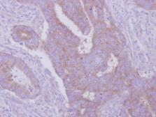 Anti-HGS antibody [C2C3], C-term used in IHC (Paraffin sections) (IHC-P). GTX101718