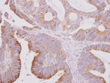 Anti-beta Tubulin 2 antibody [N1C1] used in IHC (Paraffin sections) (IHC-P). GTX101863
