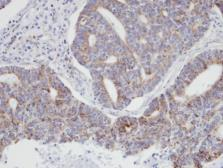 Anti-p21-ARC antibody [N1C3] used in IHC (Paraffin sections) (IHC-P). GTX101982