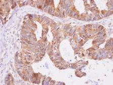 Anti-Aspartyl aminopeptidase antibody [N1N3] used in IHC (Paraffin sections) (IHC-P). GTX101993