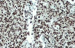 Anti-53BP1 antibody [N1], N-term used in IHC (Paraffin sections) (IHC-P). GTX102595