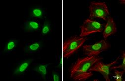 Anti-CSE1L antibody used in Immunocytochemistry/ Immunofluorescence (ICC/IF). GTX103005