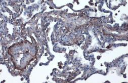 Anti-Vitronectin antibody used in IHC (Paraffin sections) (IHC-P). GTX103475