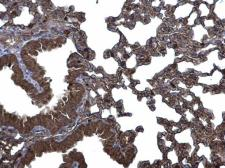 Anti-CLIC3 antibody [N1C3] used in IHC (Paraffin sections) (IHC-P). GTX104397