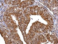 Anti-MMP2 antibody used in IHC (Paraffin sections) (IHC-P). GTX104577