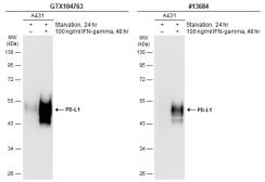 Anti-PD-L1 antibody used in Western Blot (WB). GTX104763