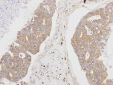 Anti-MSTO1 antibody [N1C1] used in IHC (Paraffin sections) (IHC-P). GTX105110