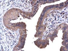 Anti-PFKL antibody [C1C3] used in IHC (Paraffin sections) (IHC-P). GTX105697