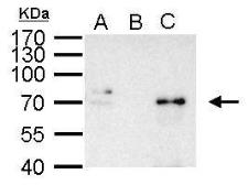 Anti-NFkB p65 antibody used in Immunoprecipitation (IP). GTX107678