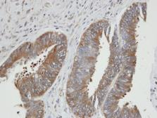 Anti-PGK2 antibody [N3C3] used in IHC (Paraffin sections) (IHC-P). GTX107837