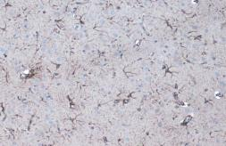Anti-GFAP antibody used in IHC (Paraffin sections) (IHC-P). GTX108711