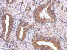 Anti-VEGFD antibody used in IHC (Paraffin sections) (IHC-P). GTX113695