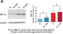 Anti-HIF1 alpha antibody used in Western Blot (WB). GTX127309