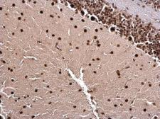 Anti-LIM1 antibody used in IHC (Paraffin sections) (IHC-P). GTX129215