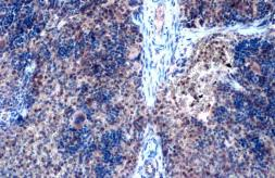 Anti-ZEB2 antibody used in IHC (Paraffin sections) (IHC-P). GTX129243