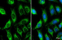 Anti-ATP5B antibody used in Immunocytochemistry/ Immunofluorescence (ICC/IF). GTX132925