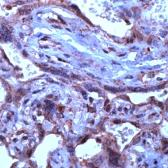 TGF-beta-3-antibody_IHC (Formalin-fixed paraffin-embedded sections)_GTX15537-1_18121411_523.jpg