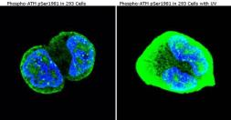 Anti-ATM (phospho Ser1981) antibody [10H11] used in Immunocytochemistry/ Immunofluorescence (ICC/IF). GTX15666