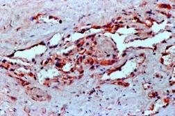 Anti-VEGF antibody [VG1] used in IHC (Paraffin sections) (IHC-P). GTX21316