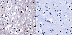 Anti-NFAT5 antibody used in IHC (Paraffin sections) (IHC-P). GTX23446