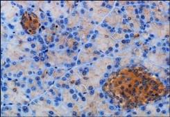 Anti-Somatostatin receptor 2 antibody used in IHC (Paraffin sections) (IHC-P). GTX29550