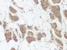 Anti-Wnt3a antibody used in IHC (Paraffin sections) (IHC-P). GTX31204