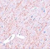 Anti-GATA3 antibody used in IHC (Paraffin sections) (IHC-P). GTX31401