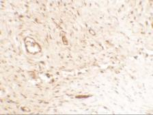 Anti-Osteopontin antibody used in IHC (Paraffin sections) (IHC-P). GTX31886