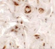 Anti-UPK1B antibody used in IHC (Paraffin sections) (IHC-P). GTX32032
