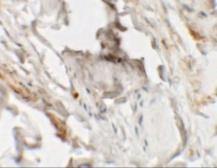 Anti-HHATL antibody used in IHC (Paraffin sections) (IHC-P). GTX32068