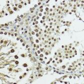 Anti-Histone H3T11ph (phospho Thr11) antibody used in IHC (Paraffin sections) (IHC-P). GTX32417