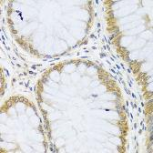 Anti-ARL6 antibody used in IHC (Paraffin sections) (IHC-P). GTX32455