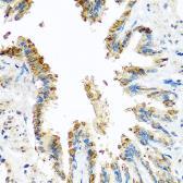 Anti-BCKDK antibody used in IHC (Paraffin sections) (IHC-P). GTX32468