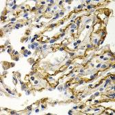 Anti-Clusterin antibody used in IHC (Paraffin sections) (IHC-P). GTX32529