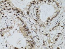 Anti-DCK antibody used in IHC (Paraffin sections) (IHC-P). GTX32553