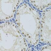 Anti-DDB1 antibody used in IHC (Paraffin sections) (IHC-P). GTX32555