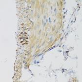 Anti-DGUOK antibody used in IHC (Paraffin sections) (IHC-P). GTX32559