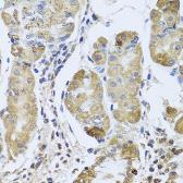 Anti-EFHC1 antibody used in IHC (Paraffin sections) (IHC-P). GTX32574